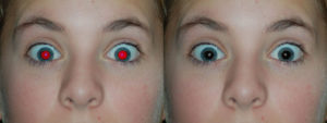 Automatic Red Eye Removal Example